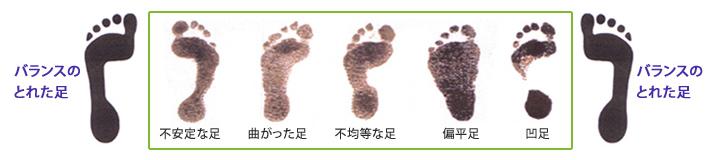 不安定な足・曲がった足・不均等な足・扁平足・凹足